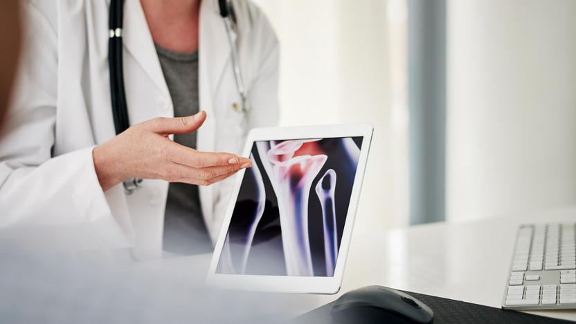 Ärztin erläutert einer Patientin Osteoporoseschäden am Knochen anhand einer Grafik auf dem Tablet
