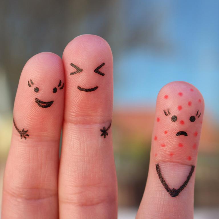 drei Finger mit einem aufgemalten Gesicht, eines davon hat Windpocken