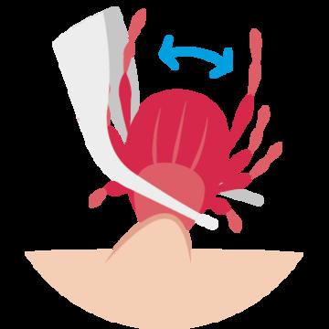 Pinzette macht leichte Drehbewegungen bei der Zecke