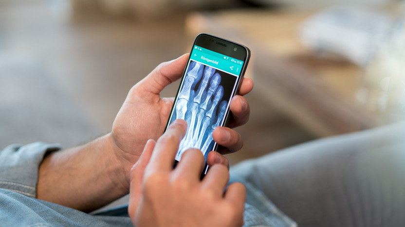 Männerhände halten ein Smartphone, auf dem ein Röntgenbild zu sehen ist