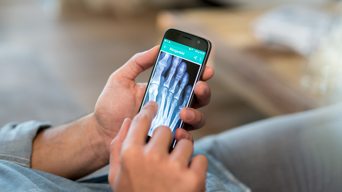 Patient nutzt eine digitale Gesundheitsanwendung auf seinem Smartphone, das Display zeigt eine Röntgenaufnahme