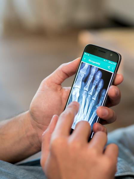 Männerhände hält Smartphone mit Röntgenbild auf Bildschirm