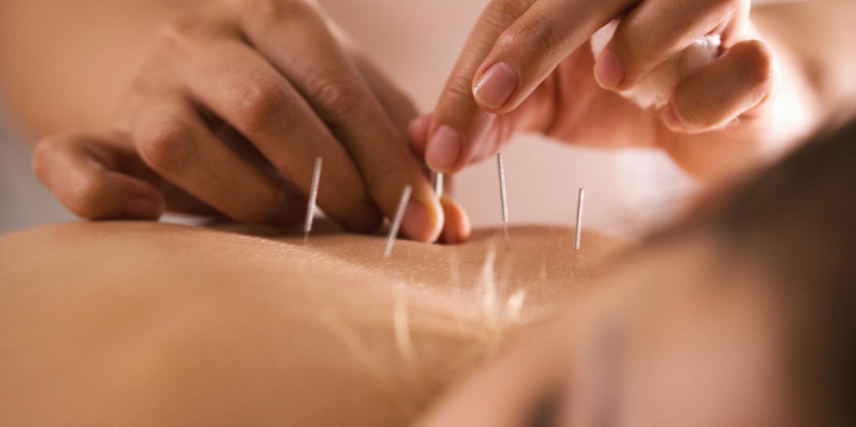 Rücken einer Frau wird mit Akupunktur behandelt.