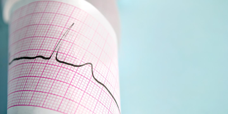 Papierbogen mit Aufzeichnung eines EKGs.