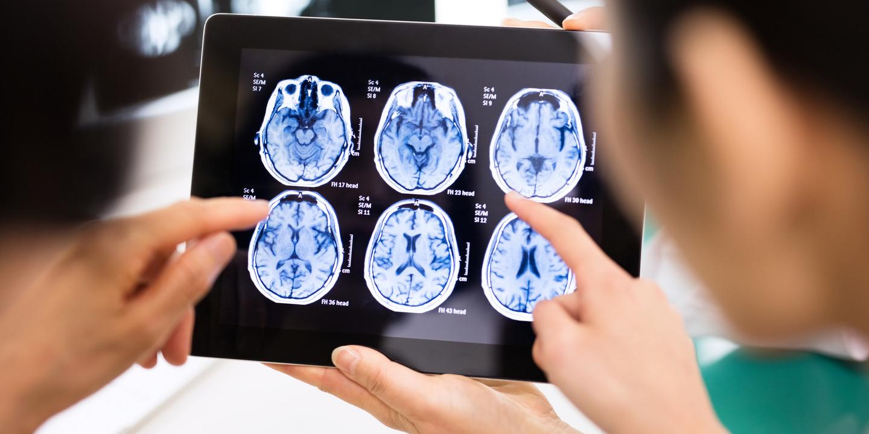 Ärzte schauen sich auf dem Tablet MRT-Ergebnisse des Gehirns eines Patienten an.